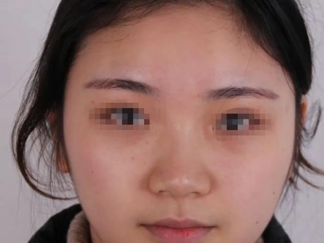 北京整形医生曾高隆鼻真实案例分享