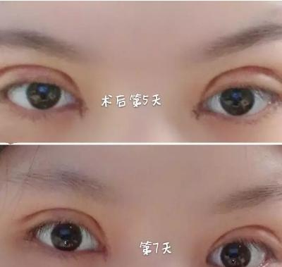 北京做的超自然全切双眼皮+开眼角