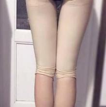 柚子呀的大腿吸脂术前照