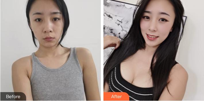 北京中日友好曾高做假体隆胸怎么样