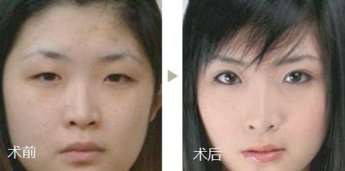 广州紫馨曹仁昌做双眼皮反馈怎么样?多少钱?