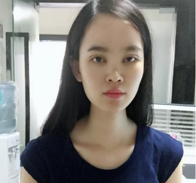 北京联合丽格郭树忠隆鼻经历分享