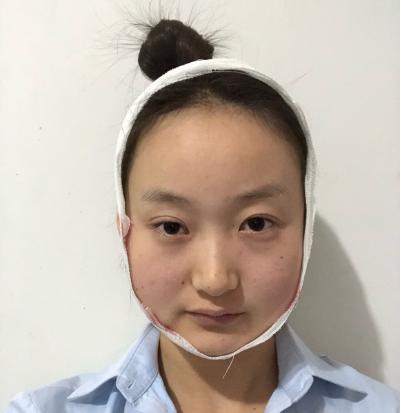 北京联合丽格罗金超下颌角磨骨案例
