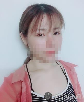 成都刘辅容做双眼皮修复之后2个月