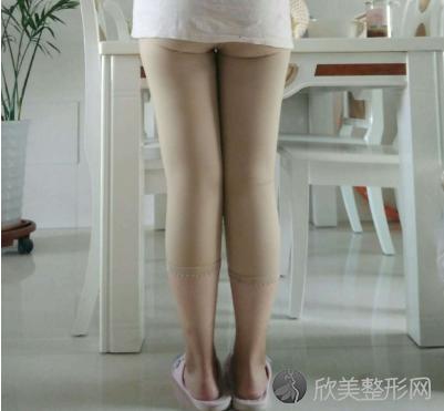 北京东方瑞丽曹建军大腿吸脂案例
