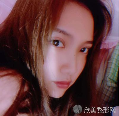 北京京民郭建玲双眼皮案例