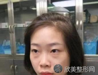 佳佳子的祛眼袋术前照
