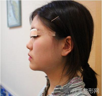 北京赵开慧双眼皮案例:这么漂亮的双眼皮你确定不要~