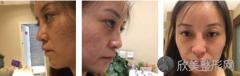 在成都百龄驻颜医学美容做了全脸自体脂肪填充怎么样,来看看