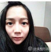 上海复美医疗美容门诊部于晓萍做隆鼻怎么样?于晓萍案例分享