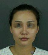 上海首尔丽格洪性范医生磨骨技术怎么样?真实案例分享