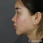 上海首尔丽格朴兴植医生磨骨好不好?来看案例就知道了
