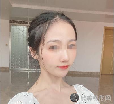 北京延世高海峰做的激光美白嫩肤