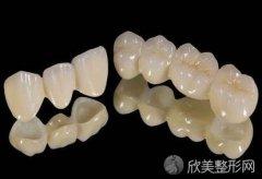二氧化锆全瓷牙套一个大约多少钱?影响价格的因素有哪些?