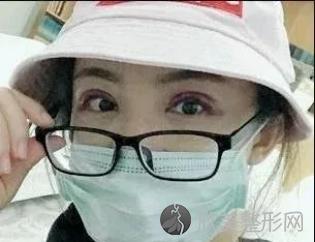 长沙爱思特张姣姣双眼皮做得好吗?本人亲身割双眼皮日记~