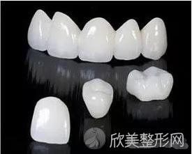 拉瓦全瓷牙更具特色
