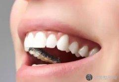 舌侧矫正的优点有哪些?来看详细的内容介绍吧