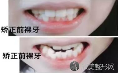 牙齿矫正图片