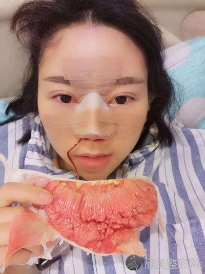 陈建华做隆鼻拆线后4天照片