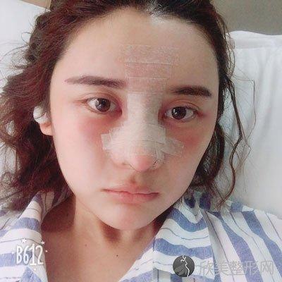 蓉雅-陈建华做隆鼻术后3天图片