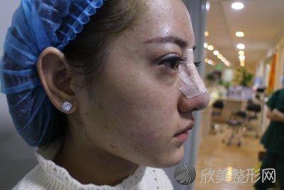 线雕隆鼻术后46天