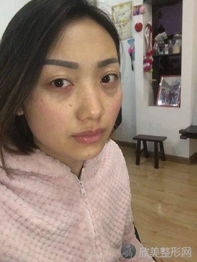 内切祛眼袋术后15天