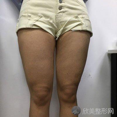 方芳子的吸脂瘦大腿术前照