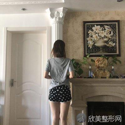 junm的吸脂瘦大腿术前照