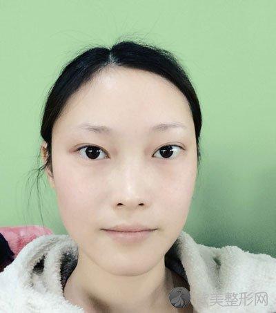 双眼皮术后60天