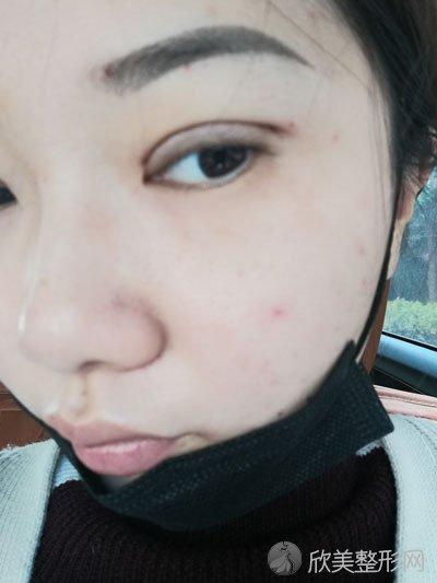 双眼皮术后90天