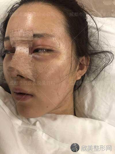 邓东伟鼻子怎么样?看看邓东伟的医生简介+隆鼻案例分享就知道啦!