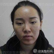 邓东伟鼻子怎么样?看看邓东伟的医生简介+隆鼻案例分享就知道