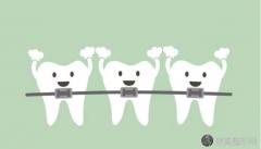 如何选择牙套?牙套的种类和价格分析
