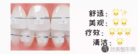 牙套的种类和价格分析
