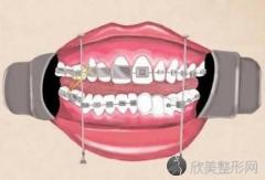 金属自锁牙套:国产和进口牙套有哪些区别?