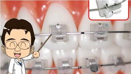 金属自锁牙套国产和进口区别
