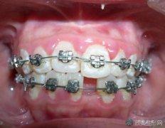 牙齿稀疏牙缝大怎么办呢?做牙齿矫正有用吗