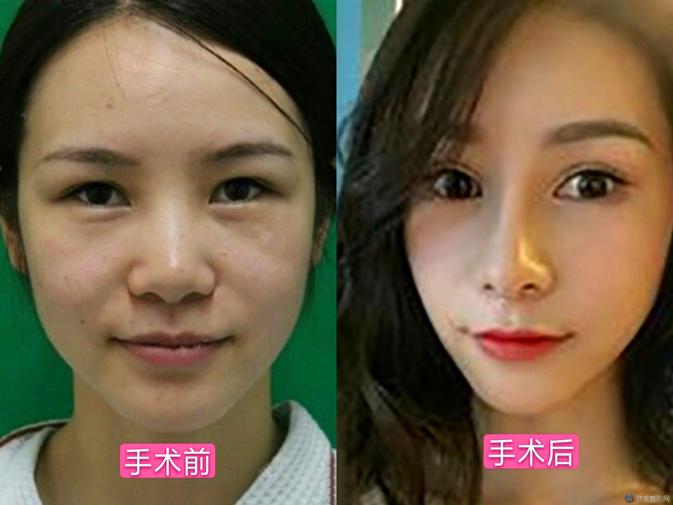 北京八大处美容医院朱珊做假体隆鼻真人案例