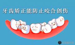 珠海做牙齿矫正好的牙科医院有哪些?口腔医院排行榜汇总
