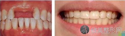 纯钛活动假牙价格及优势
