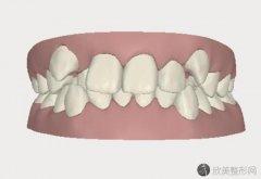 隐形牙齿矫正优点和缺点各有哪些?来看具体介绍