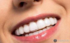 隐形矫正牙齿有作用吗?术后要注意哪些事情
