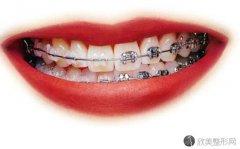 在成都牙齿矫正多少钱?影响价格的因素有哪些