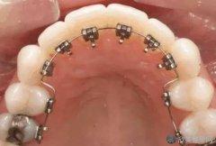 舌侧牙套整形需要花多少钱?求价格分析