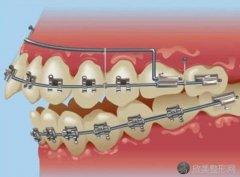 在正规的医疗机构做牙齿整形一般要花多少钱?