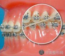 30岁做牙齿矫正的价格大概需要多少钱?
