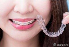 网上购买的透明牙套真的可以矫正牙齿吗?效果好不好