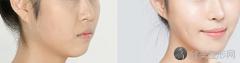 目前,隆鼻术有几种方法