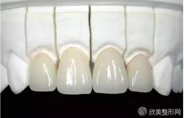 氧化锆瓷牙