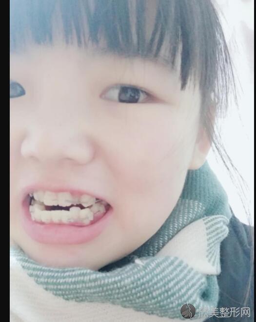 牙齿矫正术后30天